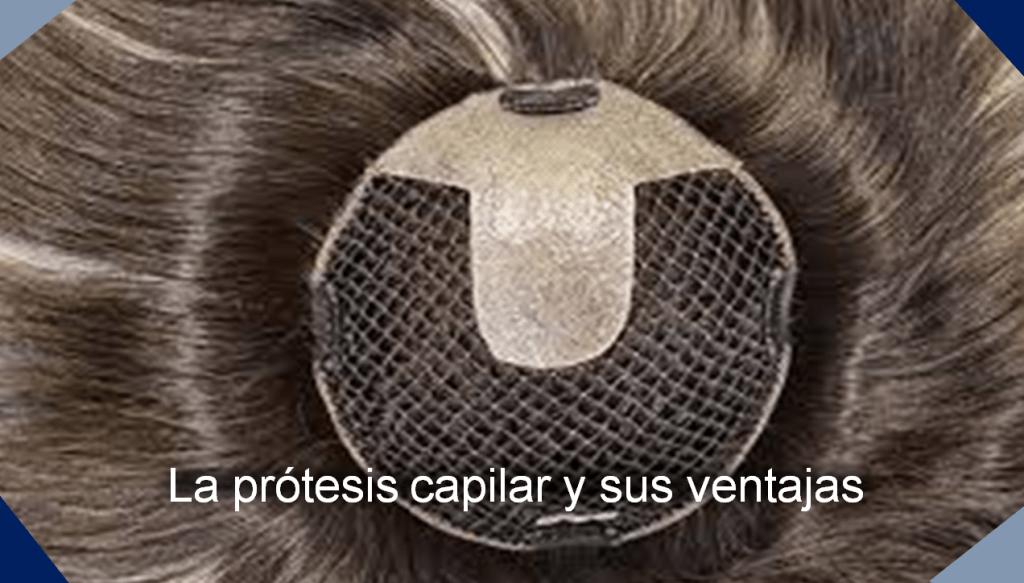 prótesis capilar